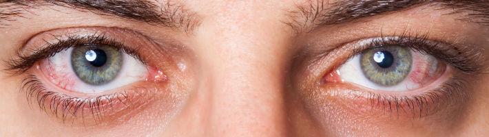 Augenrötungen sind meist die ersten Symptome bei Heuschnupfen